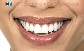 blanqueamiento dental barcelona