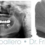Implantes con poco hueso (2)
