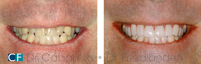 dientes-mas-blancos_antes-y-despues_clinica-dental-CF-Barcelona