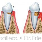 Enfermedad de las encías o periodontitis