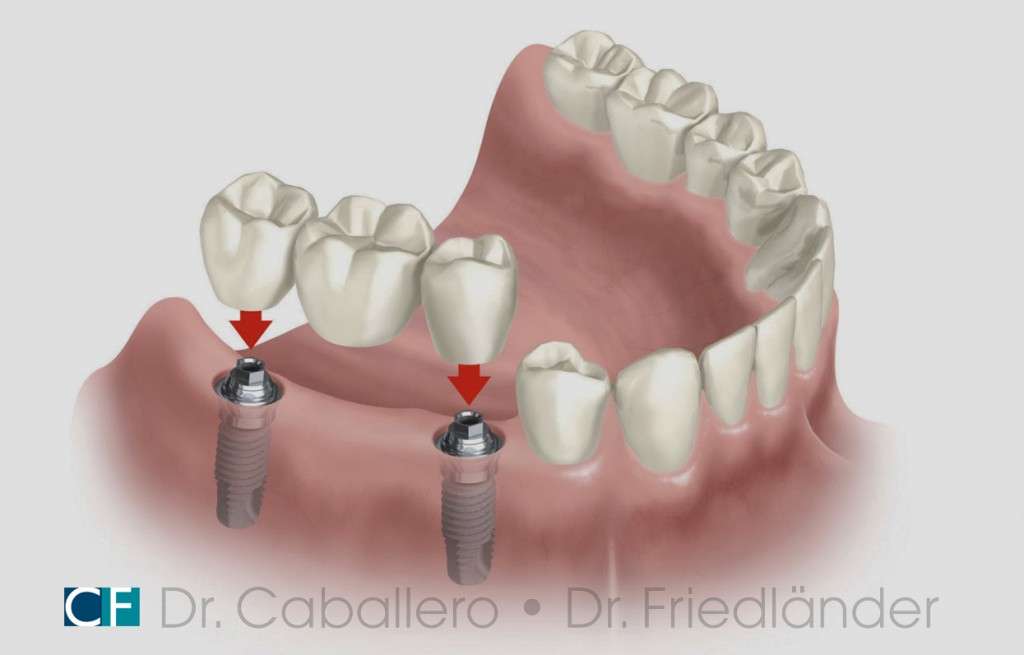 carga-inmediata_clinica-dental-CF-Barcelona-1024x655
