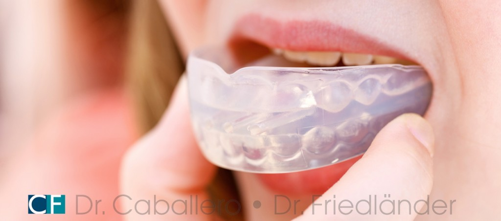 protector-bucal-deportivo-clinica-dental-CF-Barcelona-1024x452