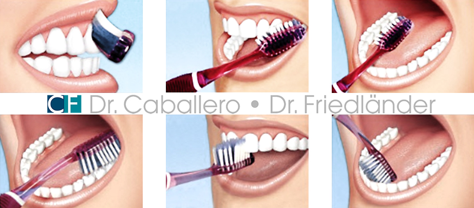 cepillado-dental_clinica-CF-Barcelona