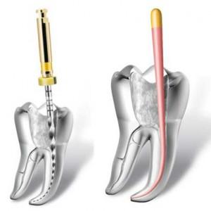 como se realiza una endodoncia