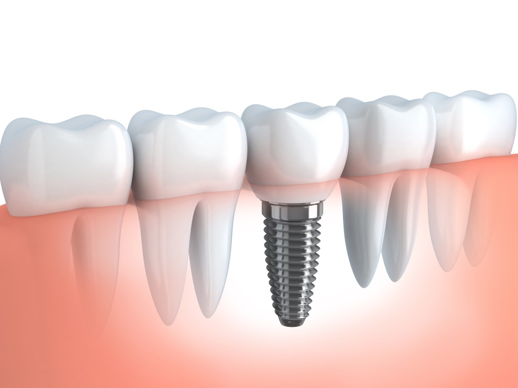 implantes-dentales-barcelona