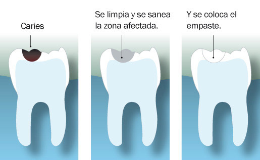 proceso de empaste dental