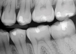 radiografia interproximal o aleta de mordida